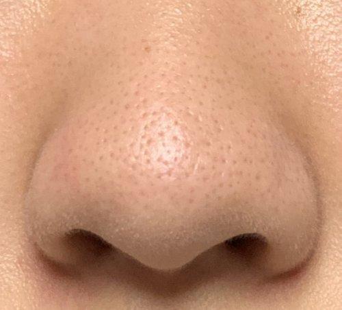 いちご 鼻