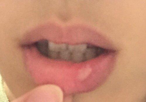 腫れ 唇 噛ん だ