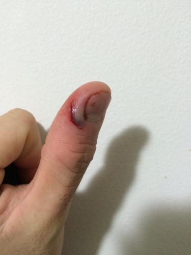 病院 切っ で た を 包丁 指