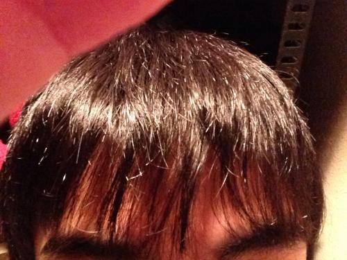 前髪 生え際 はげ