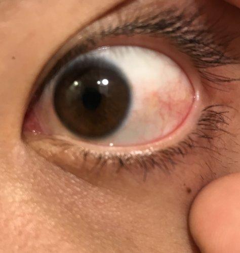 充血 目 原因 の 目が赤い!目の充血の原因と改善方法とは?
