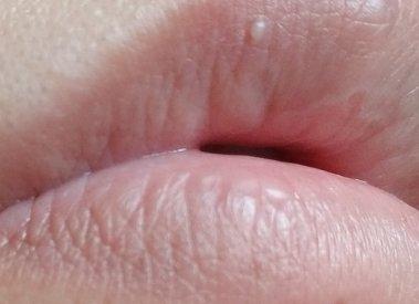 もの 唇 でき