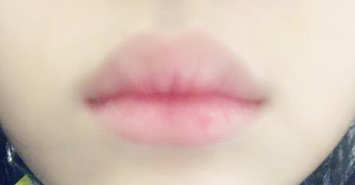 たらこ 唇 治し 方