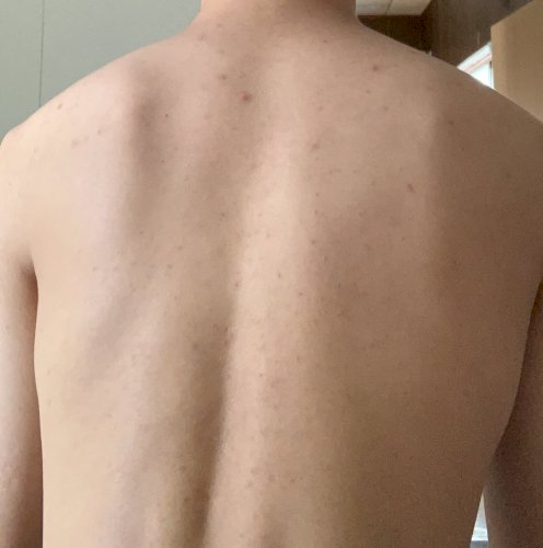 ひどい 背中 ニキビ ひどい背中ニキビはコレじゃない?マラセチアじゃなくて脂漏性湿疹かも?