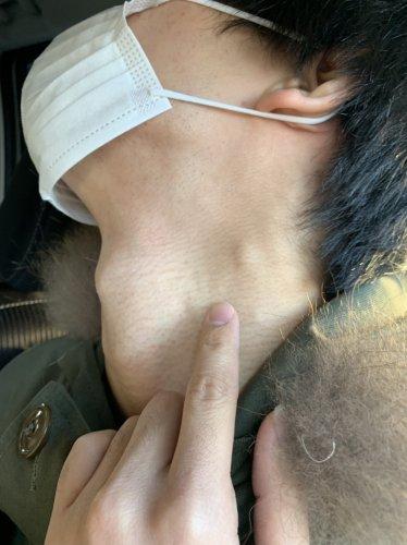 の しこり 首 首にコリコリのしこりができる原因と解消法について解説