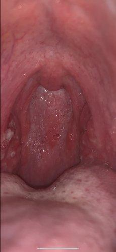 白い 喉 口からでてくる臭い玉(膿栓)の原因や改善法を紹介!口臭にも関係あるって本当?