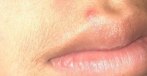 水泡 ない じゃ 唇 ヘルペス