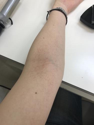 かゆく 斑点 に ない 赤い 腕