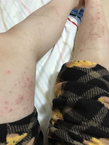 足に発疹ができたんですけど、梅毒でしょうか?ちなみに、元々