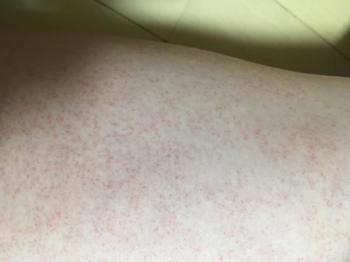 赤い 点々 太もも 突然の点状出血、それは病気だった