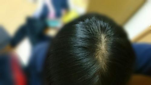 これはつむじハゲでしょうか?? 高校生2年生女子です。 ハゲ ...