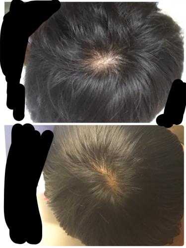 つむじ 大きい 【写真あり】つむじはげの判断基準 正常なつむじとの違いは頭皮の見...