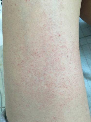 腕 に 赤い 斑点 かゆく ない
