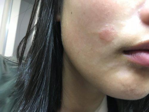 な よう た 蚊 湿疹 に 刺され