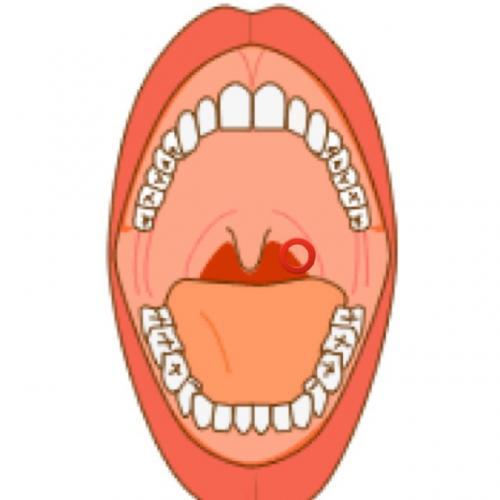 のど に 口内炎
