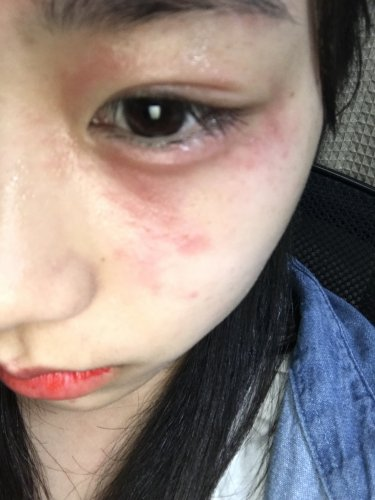 皮膚 炎 花粉 花粉症皮膚炎の特効薬と治し方!3つの市販薬に効果あり!!