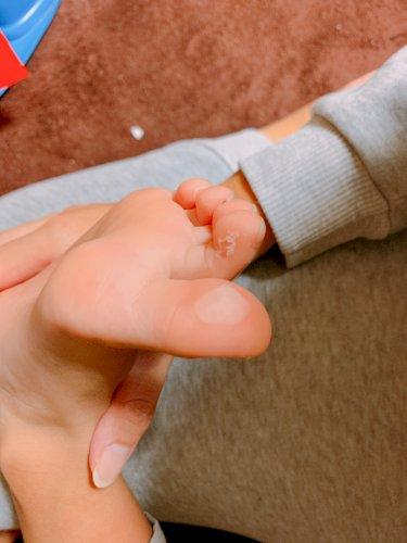 子供 水虫 画像 【手の水虫・画像】手にも水虫はうつる|ガサガサな手荒れとの違い