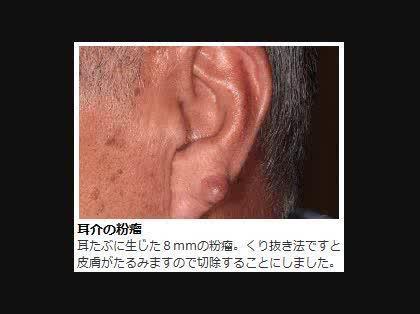 耳 の 中 に 出来 物
