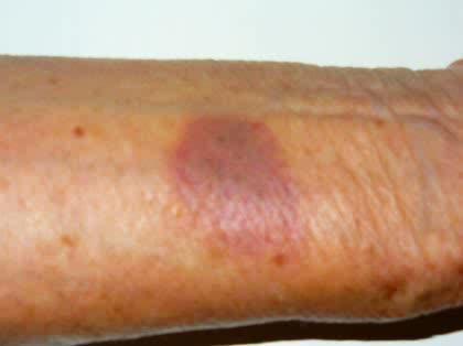 あざ 突然 赤い 皮膚がんの種類と症状を写真で解説!ほくろやシミとの違いは?