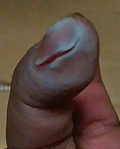 病院 包丁 を で た 指 切っ