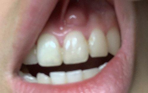 歯茎 しこり
